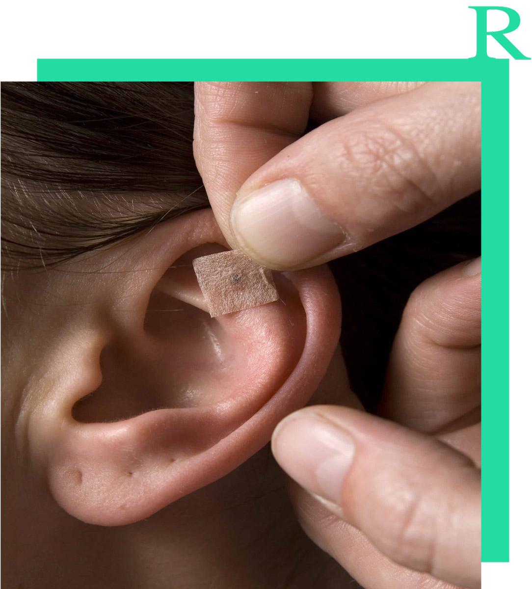 riflessologia-auricolare